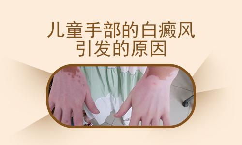 白癜风治疗医院石家庄:女性手部白癜风的危害有哪些